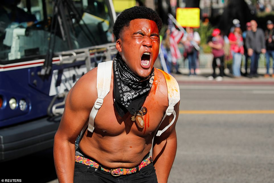 LA: Christian Angelo Hill, 19, a Black Lives Matter supporter, reacts after being sprayed with an unknown substance during a rally held by U.S. President Donald Trump supporters